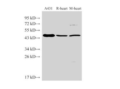 SERPINB2 Polyclonal Antibody