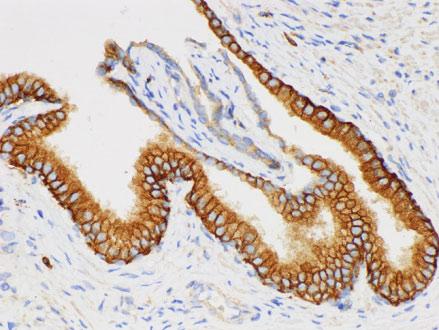 CD38 Polyclonal Antibody