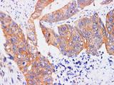 REG4 Polyclonal Antibody