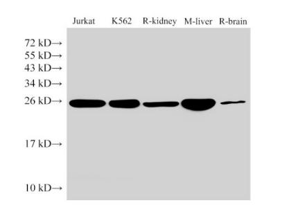 GSTp1 Polyclonal Antibody