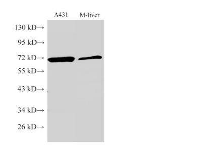 MMP2 Polyclonal Antibody