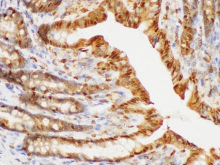 S100A6 Polyclonal Antibody